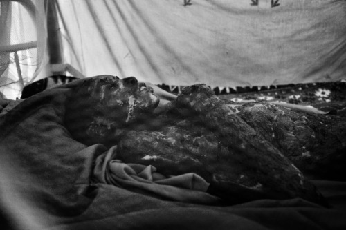 Abakar Tidjani 17 years old lies in bed in Abeche suffering from 3rd degree burns to 80% of his body. He was playing with a grenade when it exploded. Photo by Marcus Bleasdale